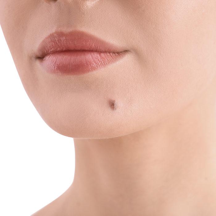 Wideodermatoskopia – badanie zmian skórnych